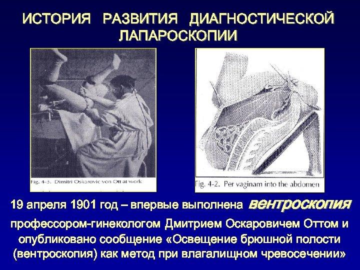 ИСТОРИЯ РАЗВИТИЯ ДИАГНОСТИЧЕСКОЙ ЛАПАРОСКОПИИ 19 апреля 1901 год – впервые выполнена вентроскопия профессором-гинекологом Дмитрием
