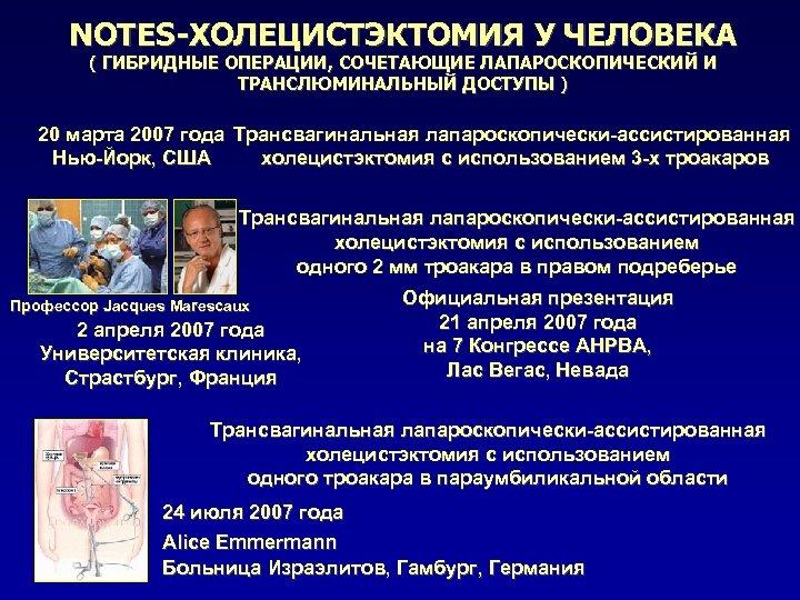 NOTES-ХОЛЕЦИСТЭКТОМИЯ У ЧЕЛОВЕКА ( ГИБРИДНЫЕ ОПЕРАЦИИ, СОЧЕТАЮЩИЕ ЛАПАРОСКОПИЧЕСКИЙ И ТРАНСЛЮМИНАЛЬНЫЙ ДОСТУПЫ ) 20 марта