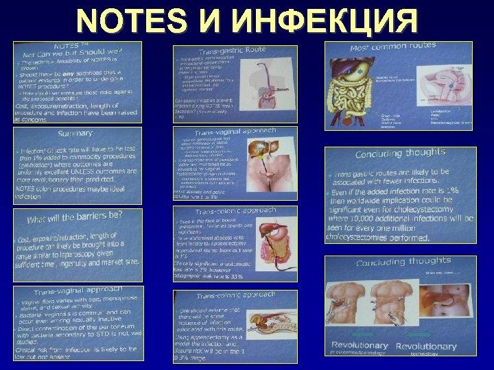NOTES И ИНФЕКЦИЯ