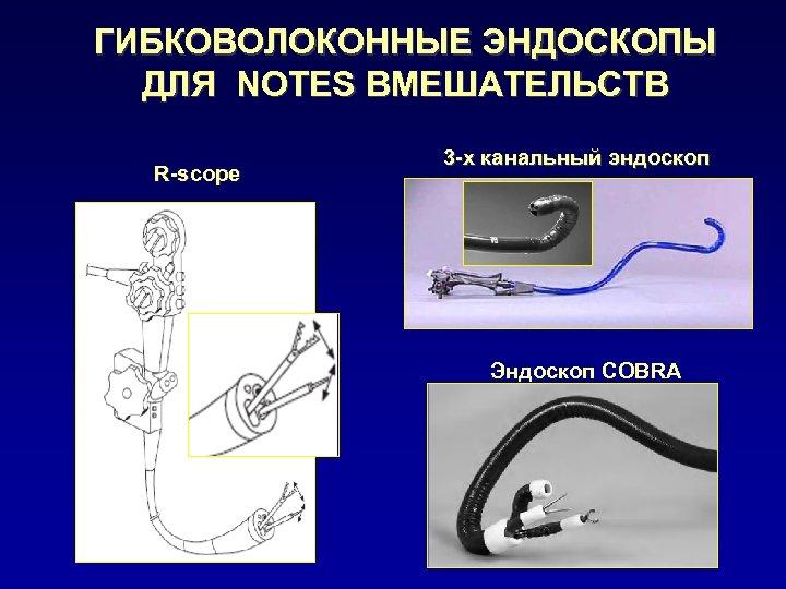 ГИБКОВОЛОКОННЫЕ ЭНДОСКОПЫ ДЛЯ NOTES ВМЕШАТЕЛЬСТВ R-scope 3 -х канальный эндоскоп Эндоскоп COBRA
