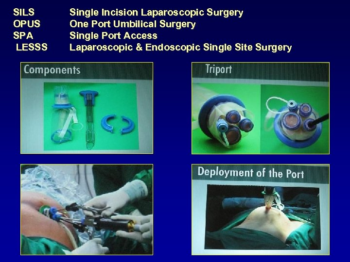 SILS OPUS SPA LESSS Single Incision Laparoscopic Surgery One Port Umbilical Surgery Single Port