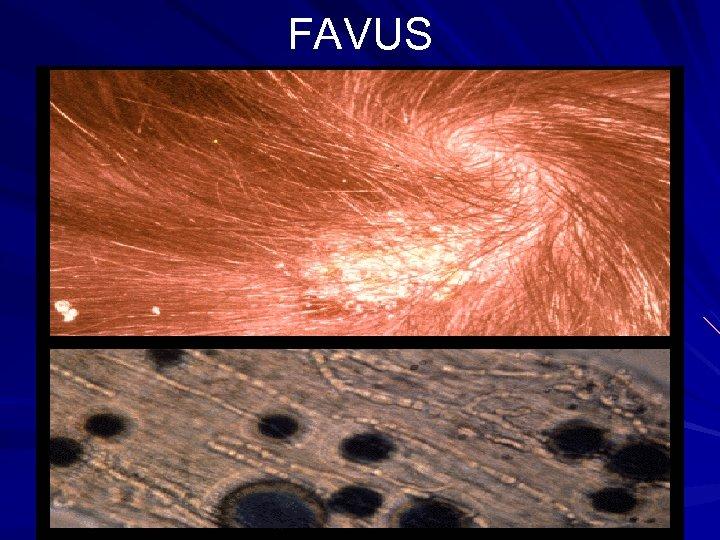 FAVUS