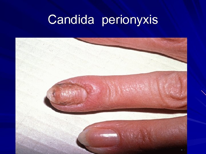 Candida perionyxis