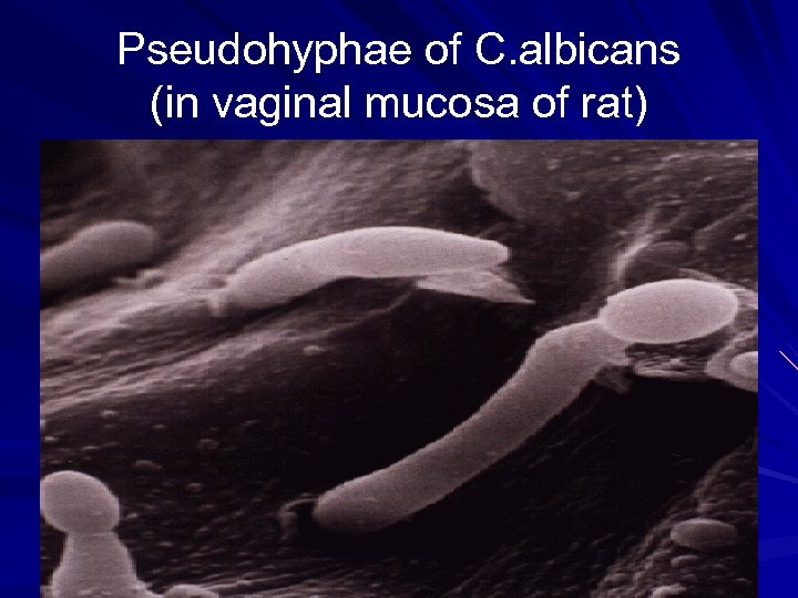 Pseudohyphae of C. albicans (in vaginal mucosa of rat)