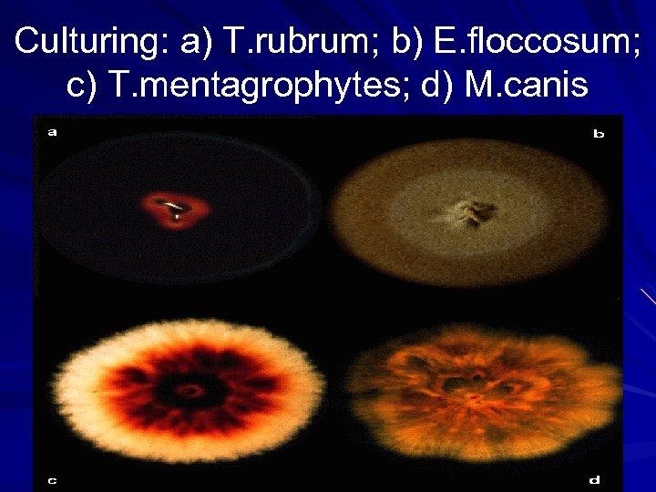 Culturing: a) T. rubrum; b) E. floccosum; c) T. mentagrophytes; d) M. canis