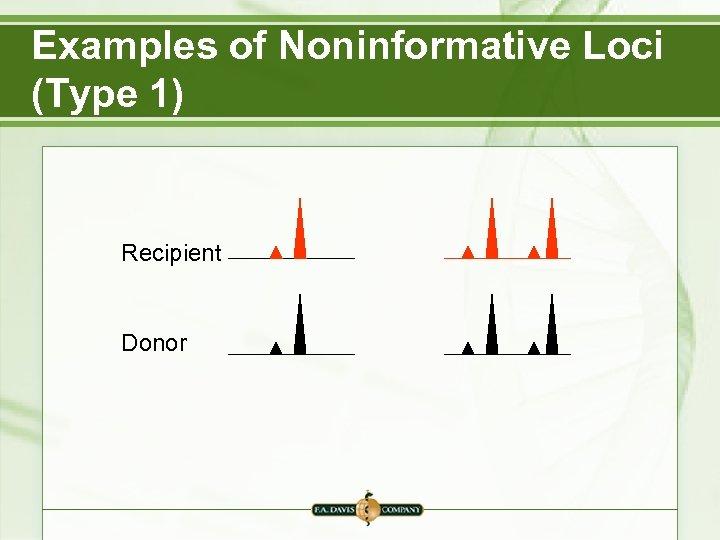 Examples of Noninformative Loci (Type 1) Recipient Donor