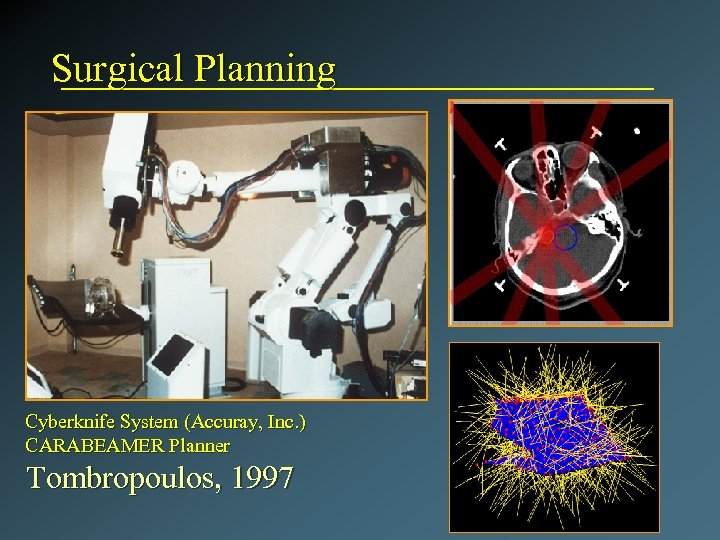 Surgical Planning Cyberknife System (Accuray, Inc. ) CARABEAMER Planner Tombropoulos, 1997