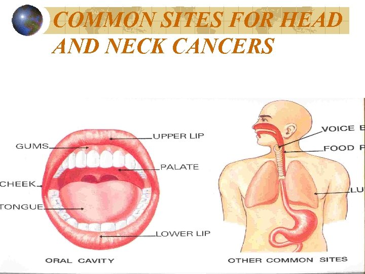 COMMON SITES FOR HEAD AND NECK CANCERS