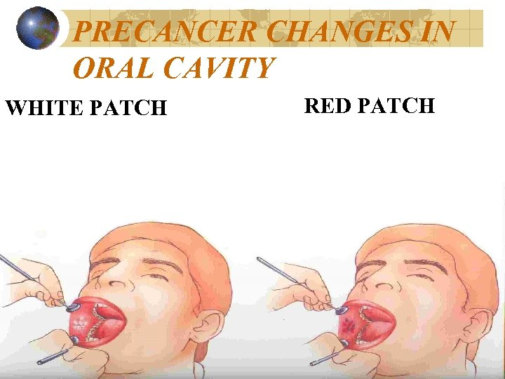 PRECANCER CHANGES IN ORAL CAVITY WHITE PATCH RED PATCH