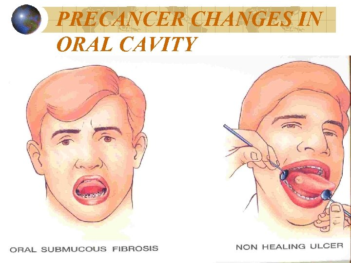 PRECANCER CHANGES IN ORAL CAVITY