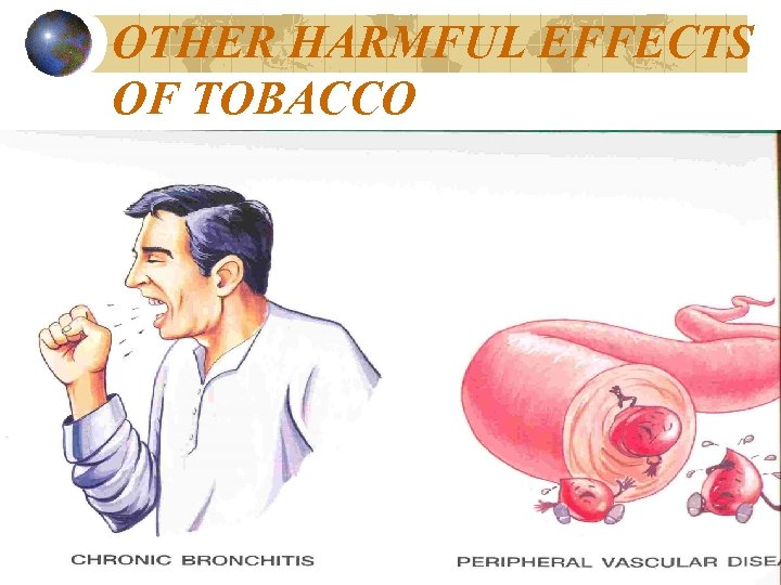 OTHER HARMFUL EFFECTS OF TOBACCO