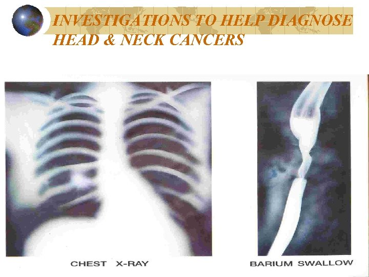 INVESTIGATIONS TO HELP DIAGNOSE HEAD & NECK CANCERS