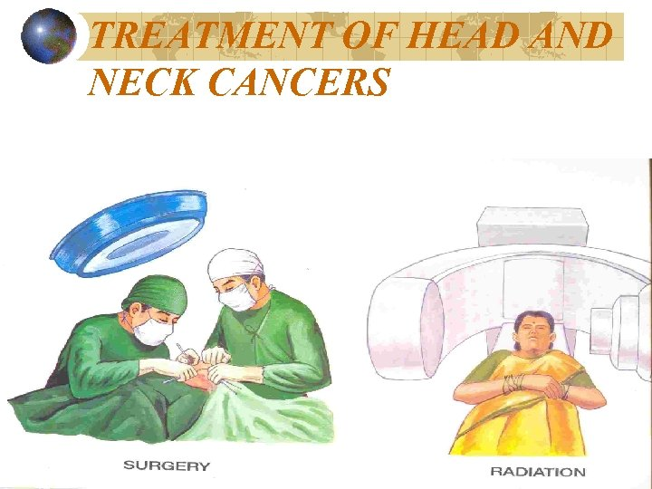 TREATMENT OF HEAD AND NECK CANCERS