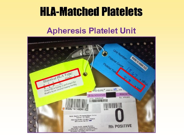 HLA-Matched Platelets Apheresis Platelet Unit