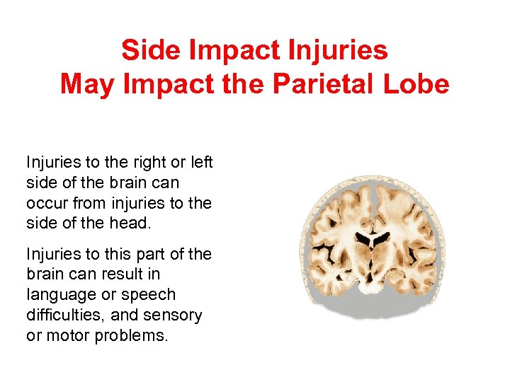 Side Impact Injuries May Impact the Parietal Lobe Injuries to the right or left