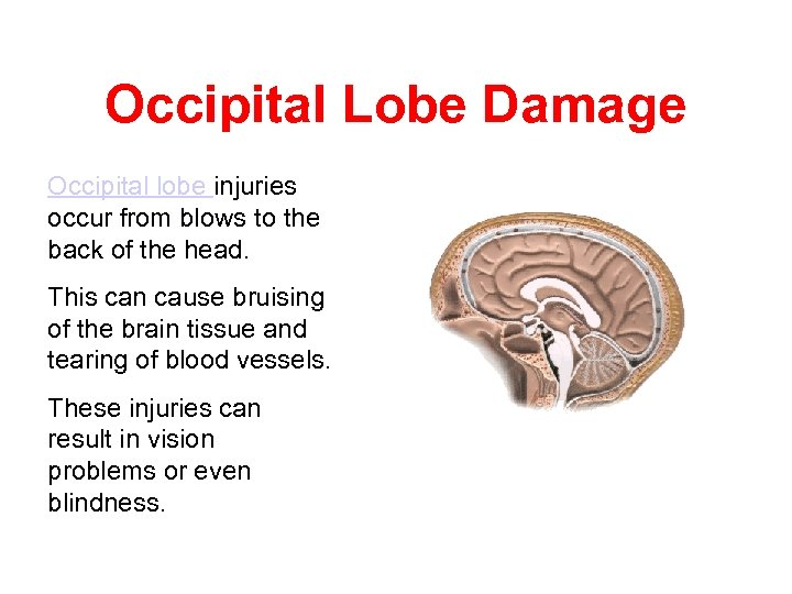 Occipital Lobe Damage Occipital lobe injuries occur from blows to the back of the