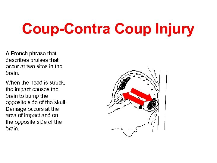 Coup-Contra Coup Injury A French phrase that describes bruises that occur at two sites
