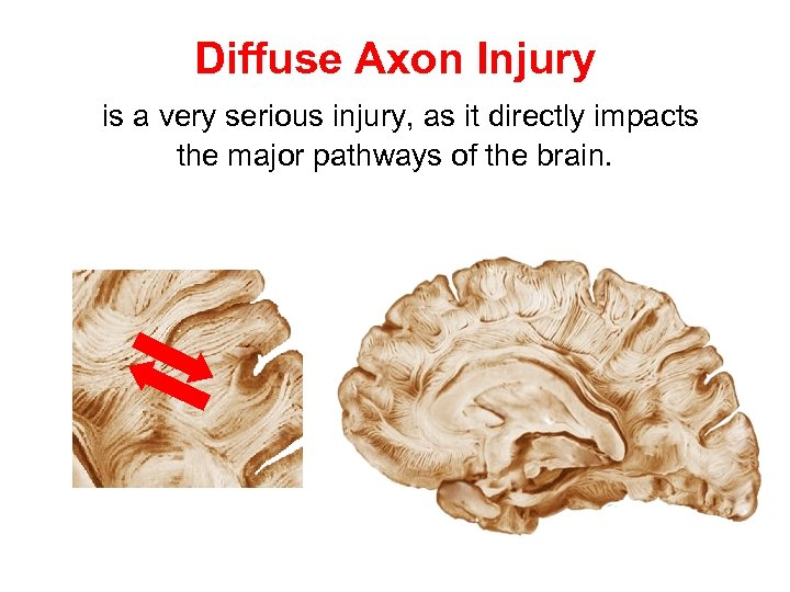 Diffuse Axon Injury is a very serious injury, as it directly impacts the major