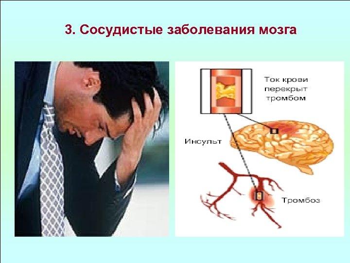 3. Сосудистые заболевания мозга