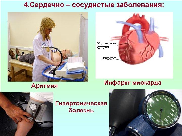 4. Сердечно – сосудистые заболевания: Аритмия Инфаркт миокарда Гипертоническая болезнь