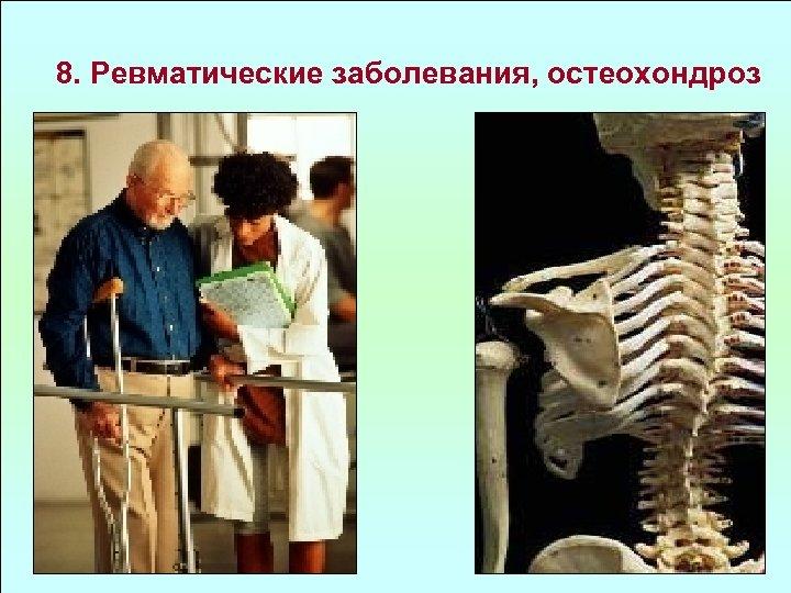 8. Ревматические заболевания, остеохондроз