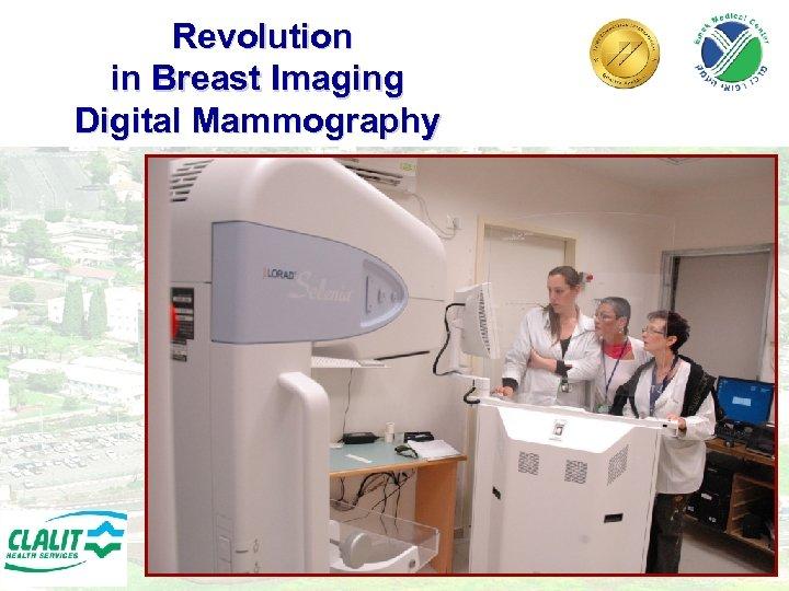 Revolution in Breast Imaging Digital Mammography 23