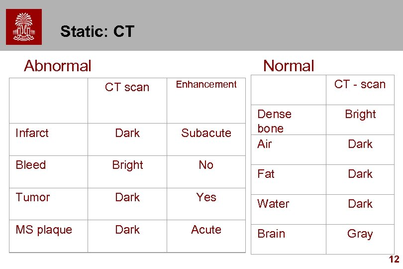 Static: CT Abnormal Normal CT scan Enhancement CT - scan Dense bone Air Bright