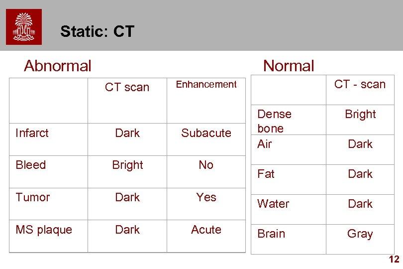 Static: CT Abnormal Normal CT scan Enhancement CT - scan Dense bone Air Bright
