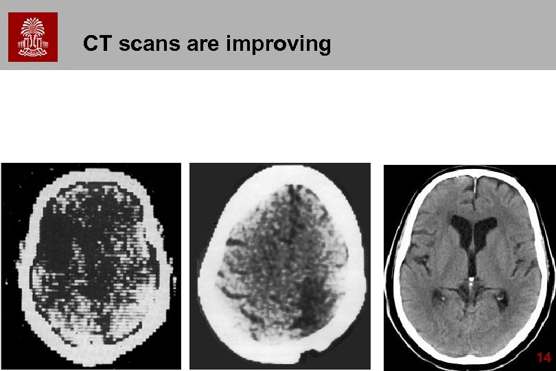 CT scans are improving 14