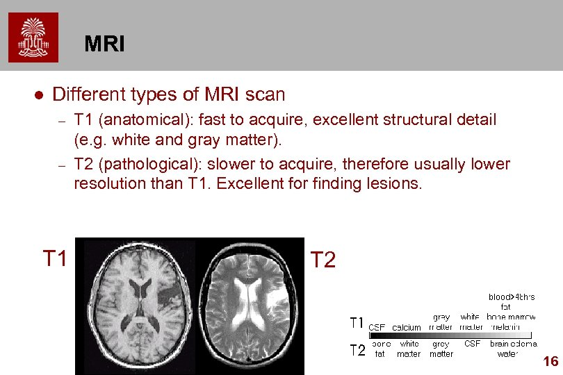 MRI l Different types of MRI scan – – T 1 (anatomical): fast to