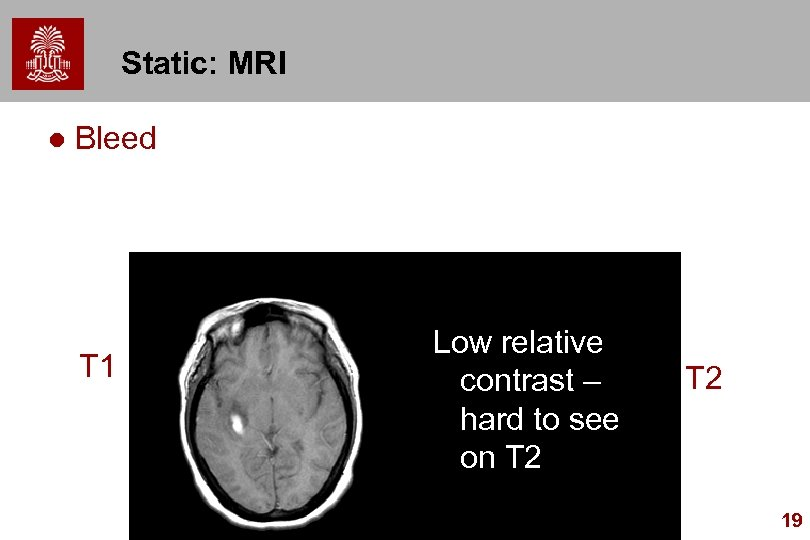 Static: MRI l Bleed T 1 Low relative contrast – hard to see on