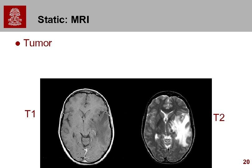 Static: MRI l Tumor T 1 T 2 20