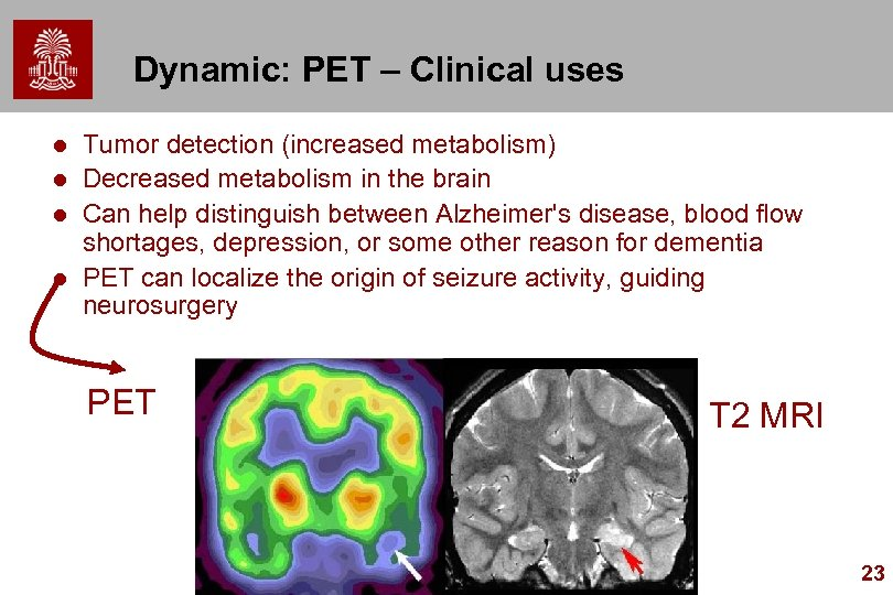 Dynamic: PET – Clinical uses l l Tumor detection (increased metabolism) Decreased metabolism in