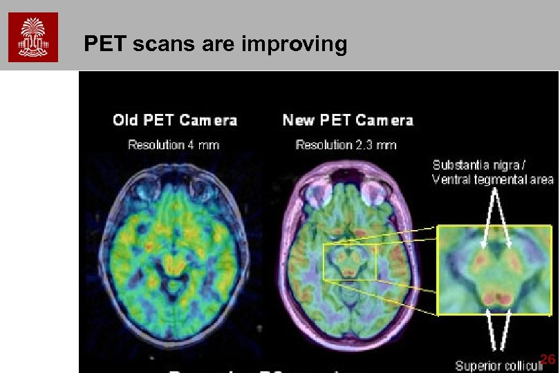 PET scans are improving 26