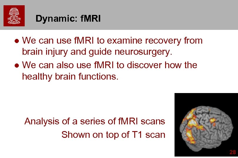 Dynamic: f. MRI We can use f. MRI to examine recovery from brain injury