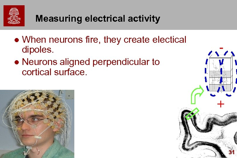 Measuring electrical activity When neurons fire, they create electical dipoles. l Neurons aligned perpendicular