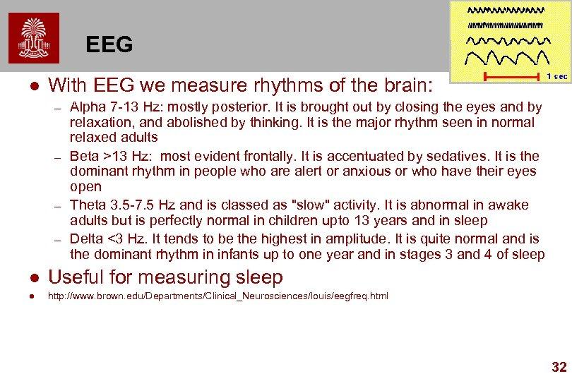 EEG l With EEG we measure rhythms of the brain: – – Alpha 7