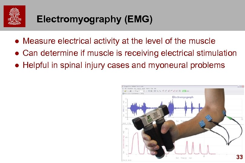 Electromyography (EMG) l l l Measure electrical activity at the level of the muscle