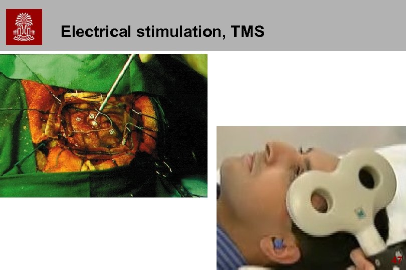 Electrical stimulation, TMS 47