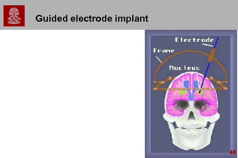 Guided electrode implant 48