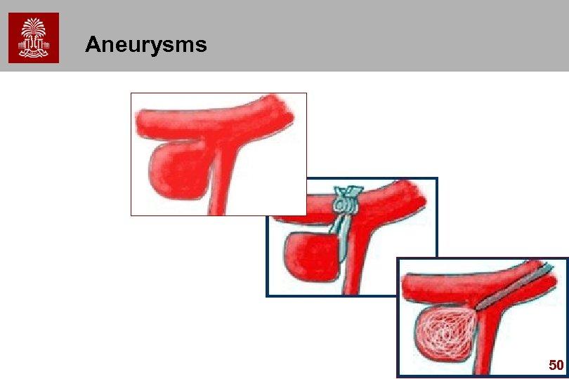 Aneurysms 50