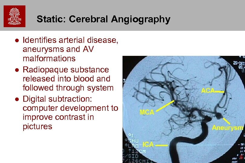 Static: Cerebral Angiography l l l Identifies arterial disease, aneurysms and AV malformations Radiopaque