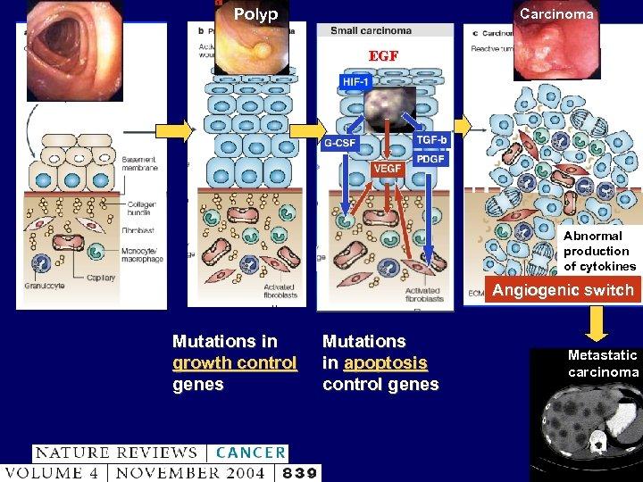 Polyp Carcinoma EGF Abnormal production of cytokines Angiogenic switch Mutations in growth control genes