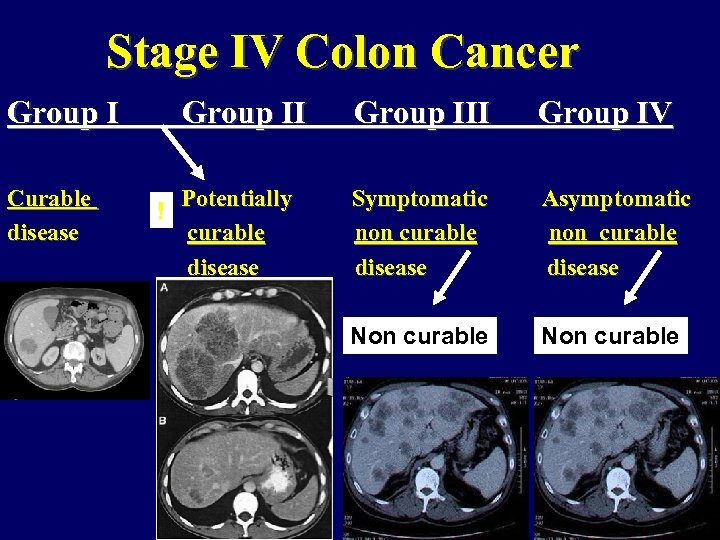 Stage IV Colon Cancer Group I Curable disease Group II ! Group III Group