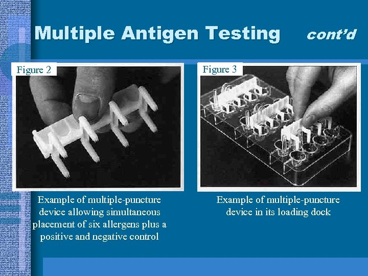 Multiple Antigen Testing Figure 2 Example of multiple-puncture device allowing simultaneous placement of six