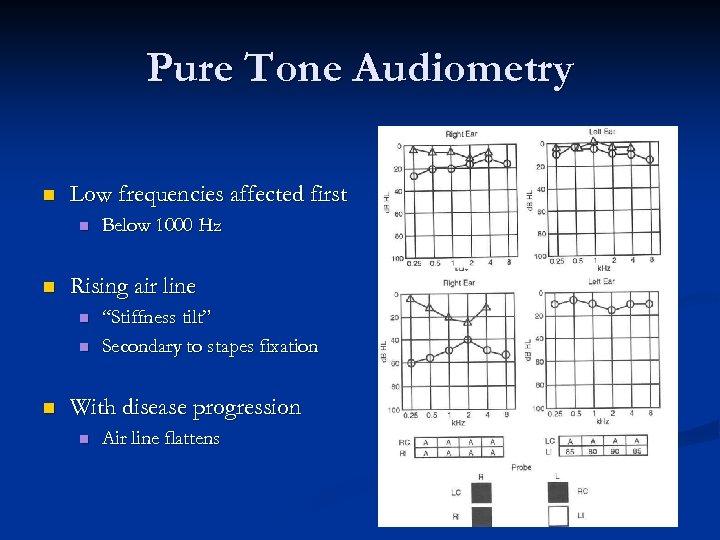 Pure Tone Audiometry n Low frequencies affected first n n Rising air line n