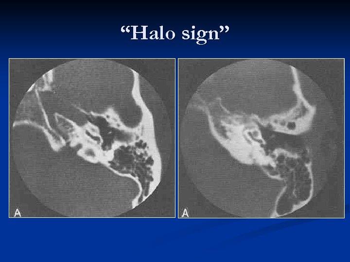 """""""Halo sign"""""""