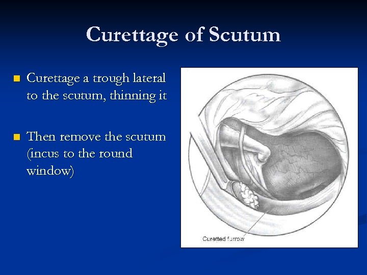 Curettage of Scutum n Curettage a trough lateral to the scutum, thinning it n
