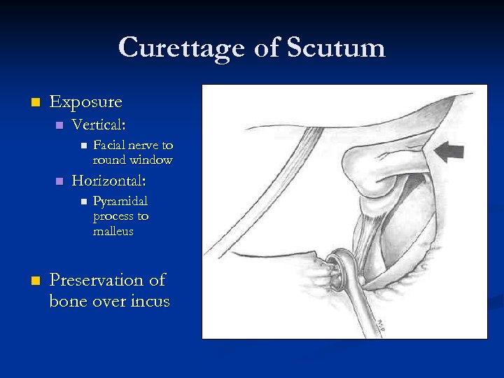 Curettage of Scutum n Exposure n Vertical: n n Horizontal: n n Facial nerve