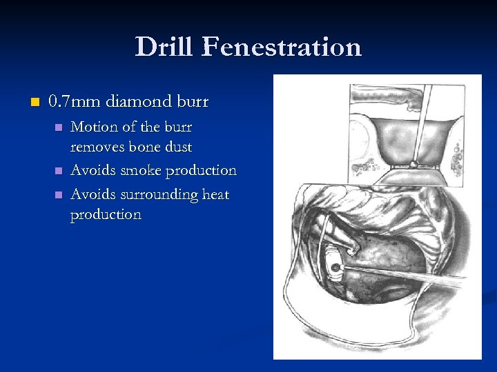 Drill Fenestration n 0. 7 mm diamond burr n n n Motion of the